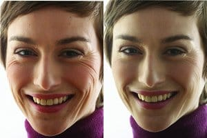 Kodak Boots Photoshop before and after face blemish