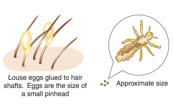 Nits and head lice graphic