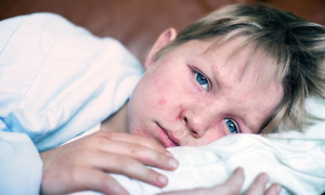 Measles outbreaks could make for a miserable family Christmas