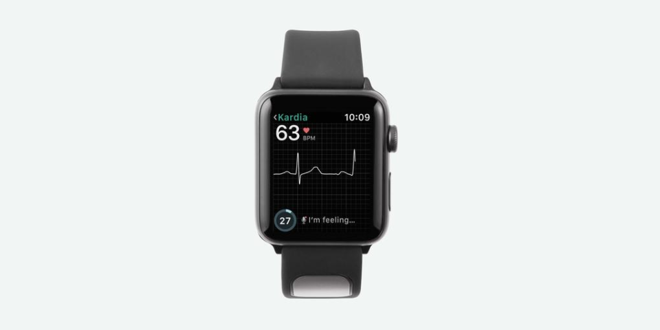 New Apple Watch band can predict heart problems