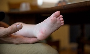 Parents warned to look out for hand, foot and mouth disease